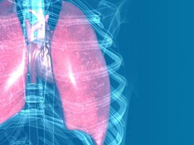 IDIOPATHIC-LUNG-DISEASE
